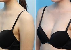 Khắc phục tình trạng ngực hai bên không cân đối