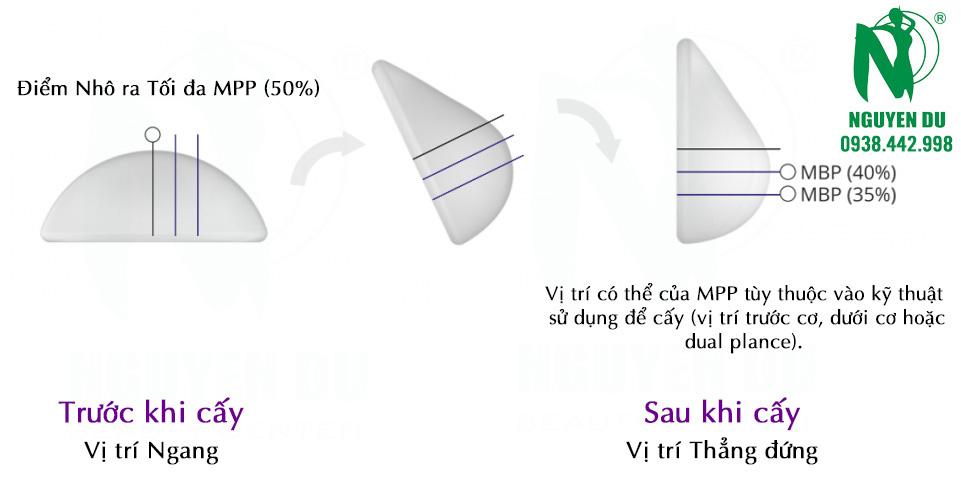 cử động của túi ngực Nano chip