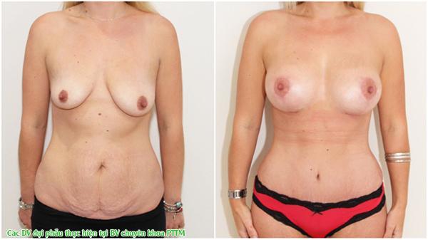 hắc phục được tình trạng ngực lép, ngực hai bên không cân đối