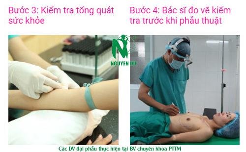 quy trình nâng ngực nano chip
