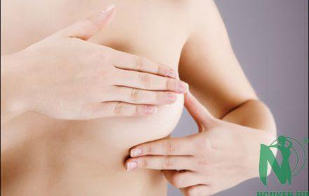 Nâng ngực chảy xệ và kéo núm vú tụt