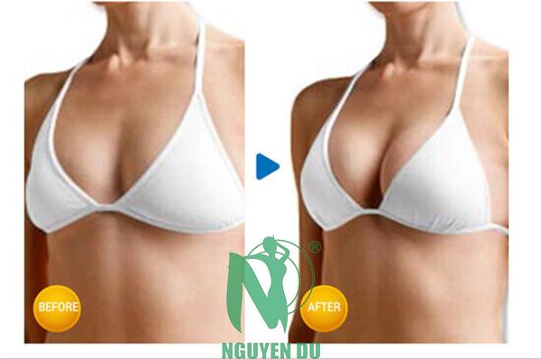 nâng ngực nano chip