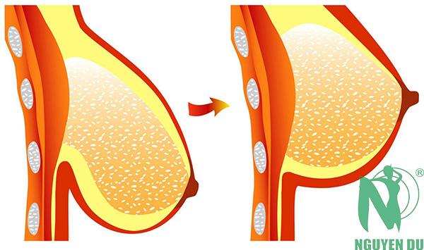 khắc phục ngực sa trệ