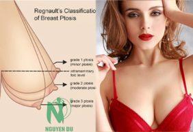Cách khắc phục ngực sa trệ không phẫu thuật