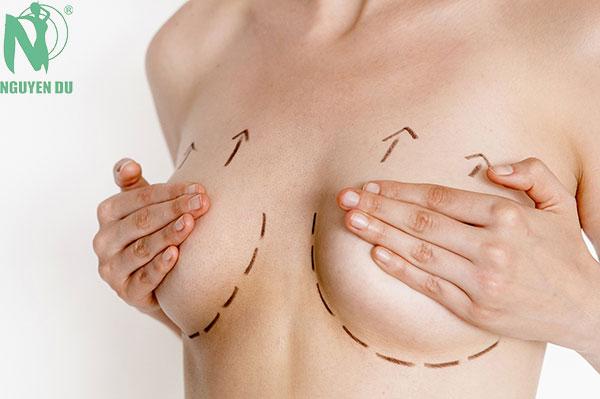 phẫu thuật nâng ngực